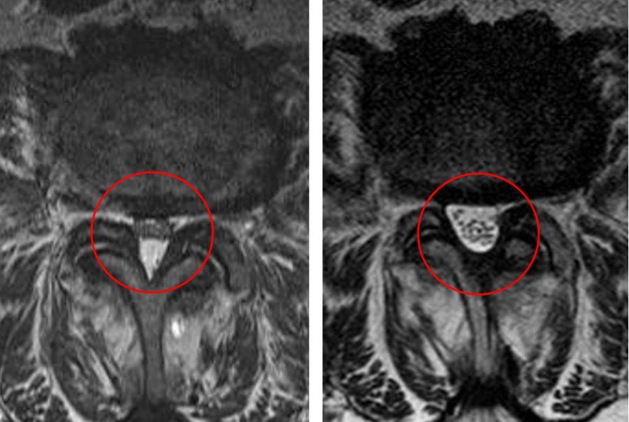 Facettensyndrom – Verschleiß der kleinen Wirbelgelenke kann sehr schmerzhaft sein.