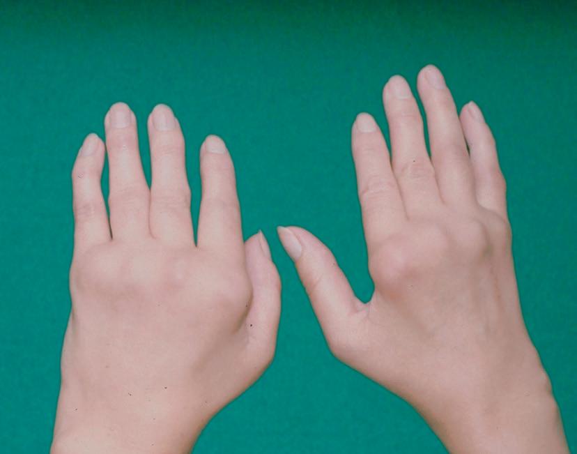 Rheumatische Hand