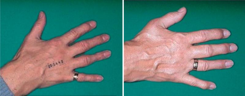 Arthrose in den Fingern: Diese Therapien helfen