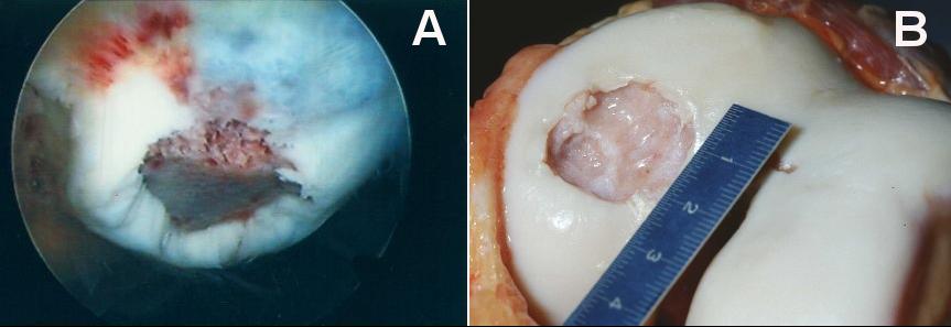 Chondropathie Patellae